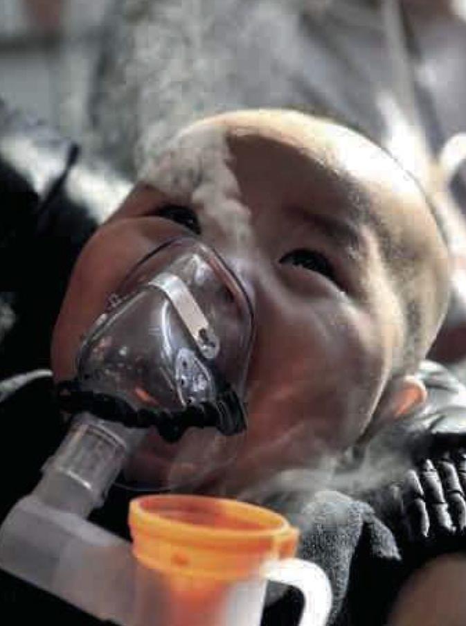 Le nébuliseur, un appareil adapté pour traiter les problèmes respiratoires des enfants à l'hôpital de Pékin.